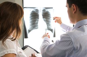 doctors consulting over a chest x-ray